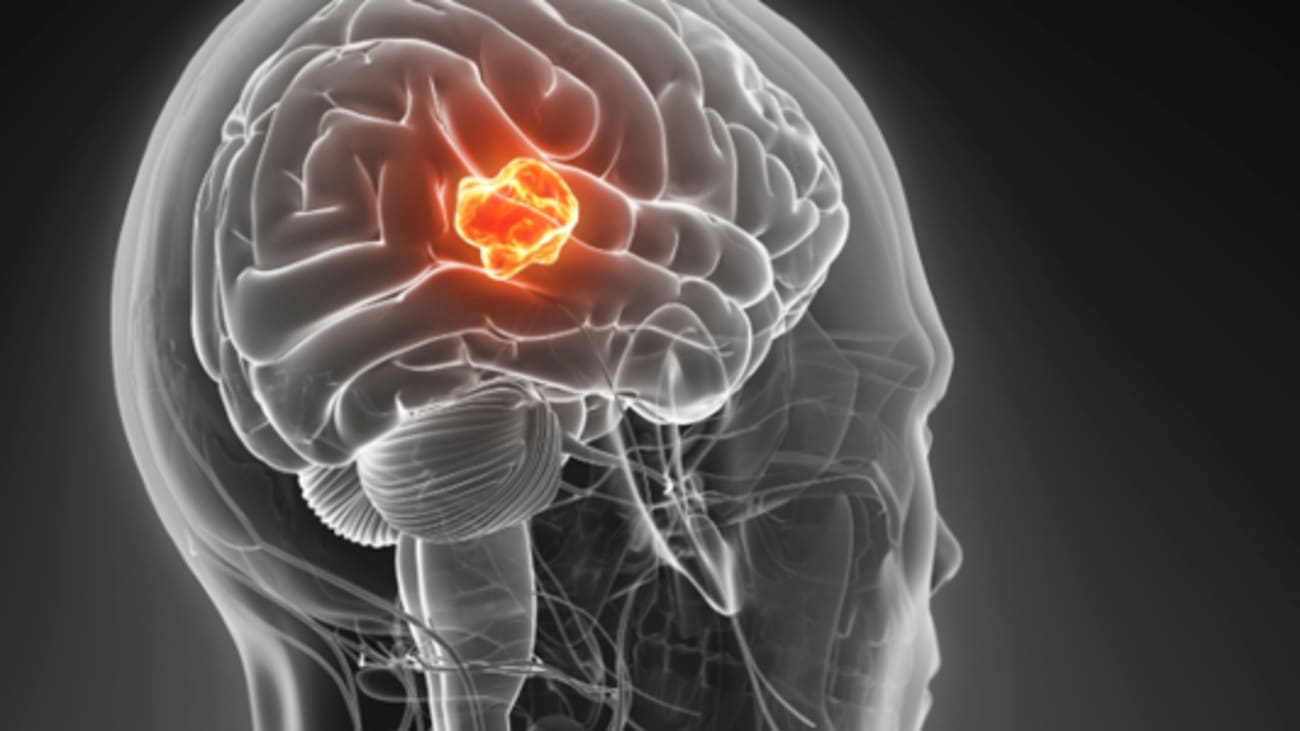 Latest Options for the Diagnosis and Treatment of Pediatric Brain Tumors