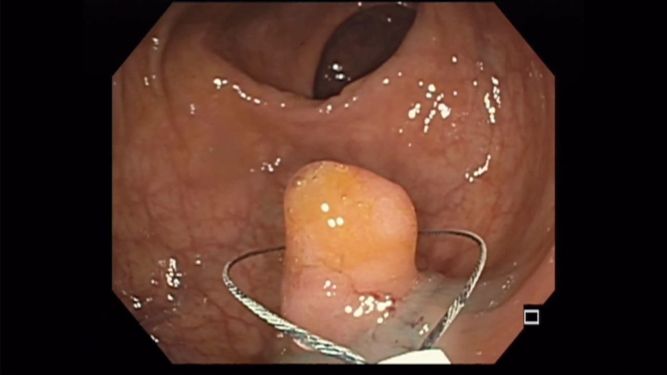 Endoscopic Mucosal Resection Case by Dr Neil Sharma, of Parkview Health Fort Wayne, IN