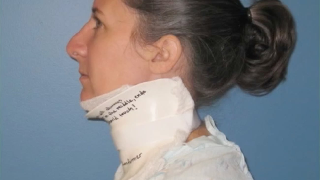 Burns 405: Neck Splint