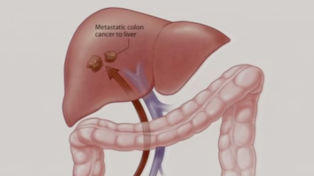 Treating Colon Cancer that Has Spread to the Liver