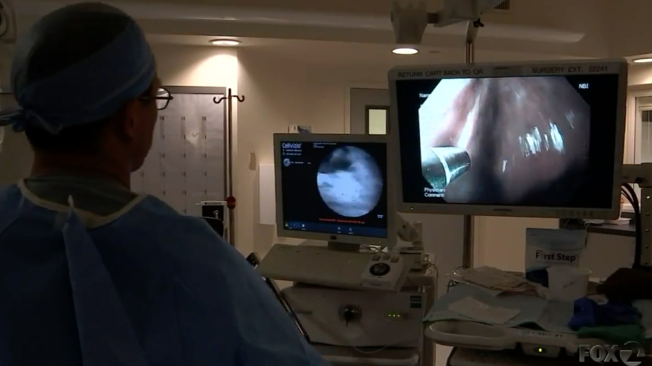 Non-invasive Approach to Esophageal Cancer