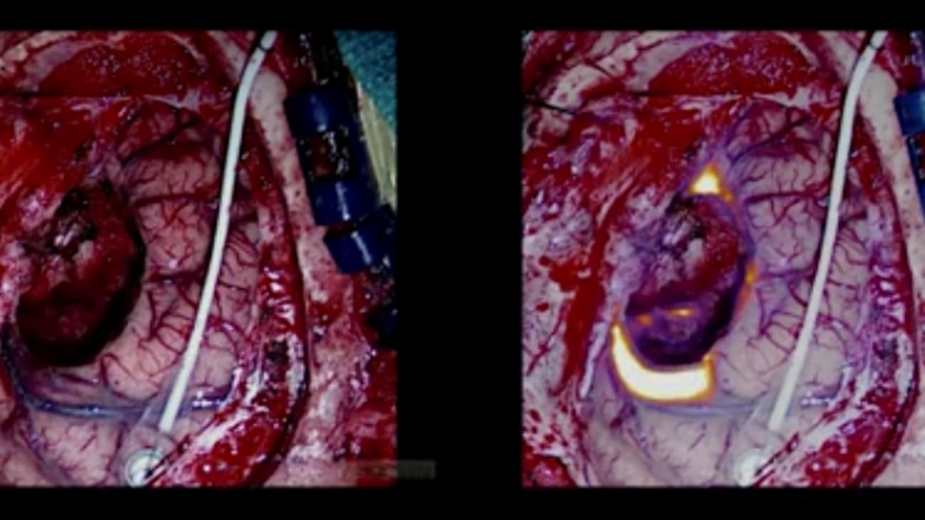 Fluorescent-­Guided Brain Tumor Resection