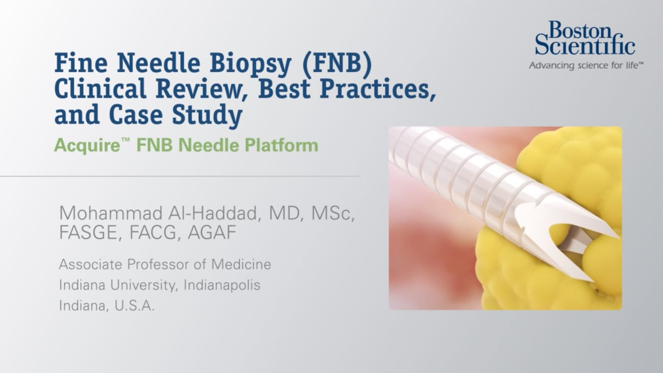 Fine Needle Biopsy (FNB) Clinical Review, Best Practices, and Case Study, by Mohammad Al-Haddad, MD