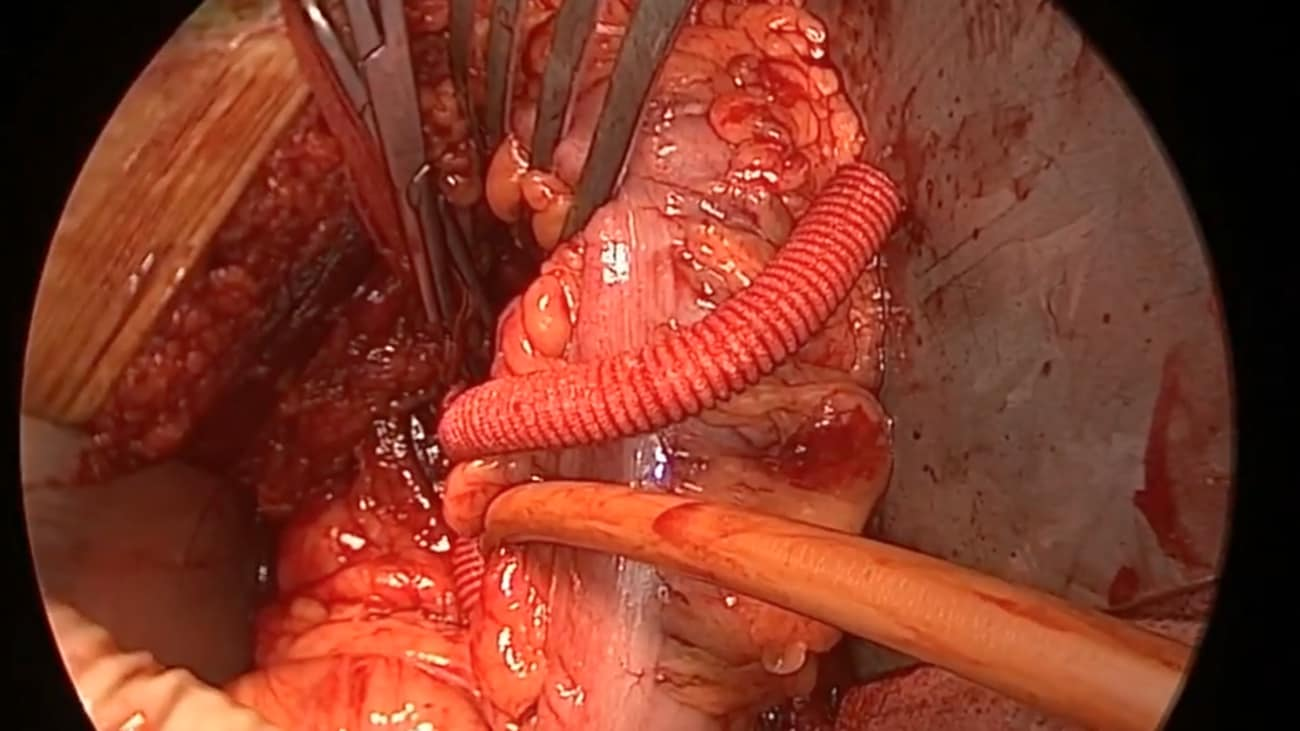 Open Aorta Left Iliac Anastomosis Case - Part 4 of 4