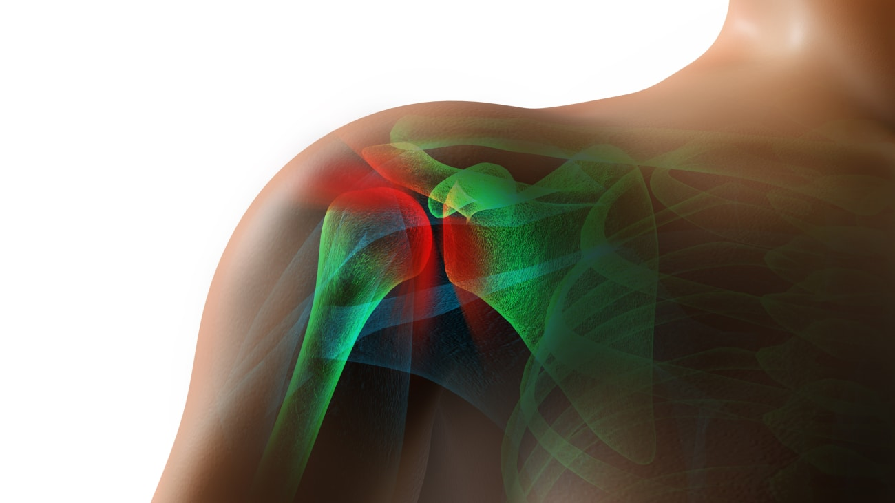 Arthroscopic, Anchorless, Transosseous Rotator Cuff Repair