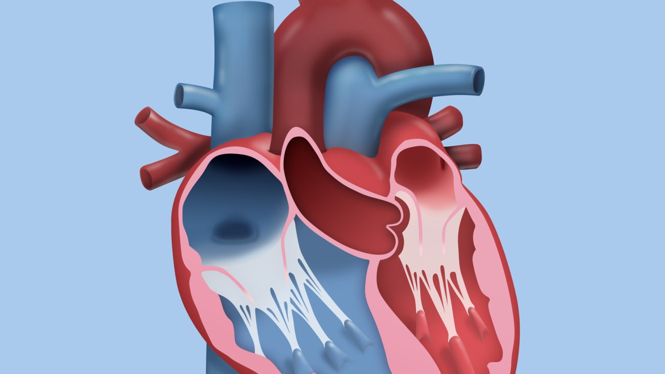 Robotic Mitral Valve Surgery - BroadcastMed