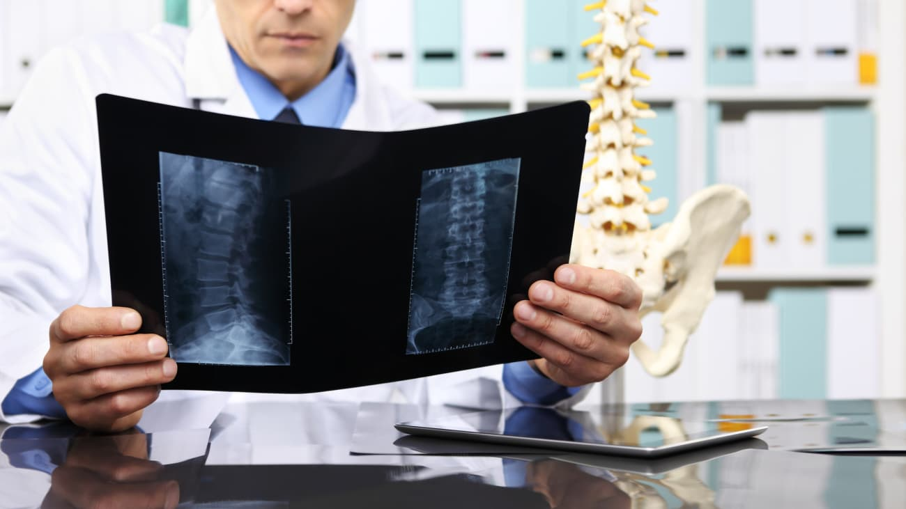 Spinal Surgical Planning - BroadcastMed