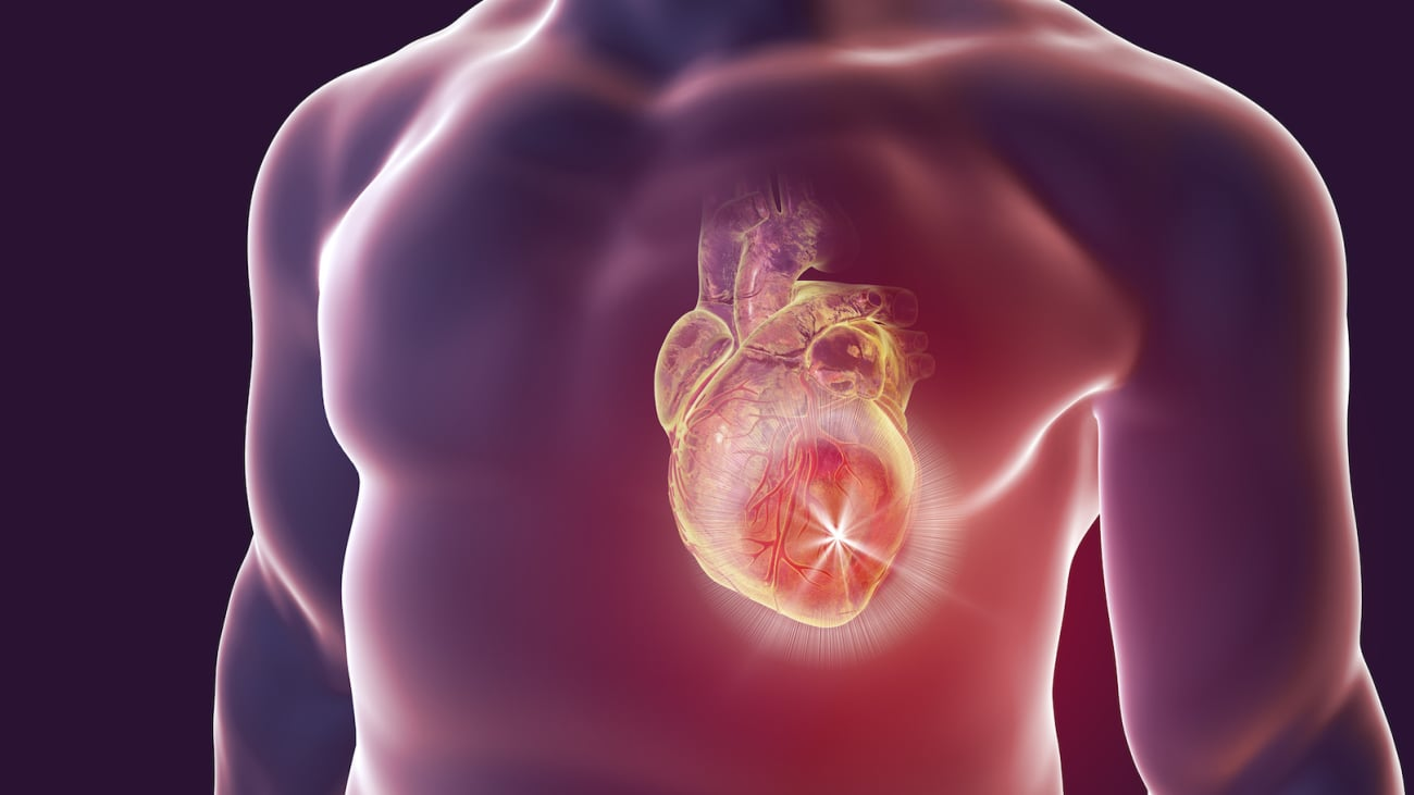 Hypertrophic Cardiomyopathy: What's All the HYPE?