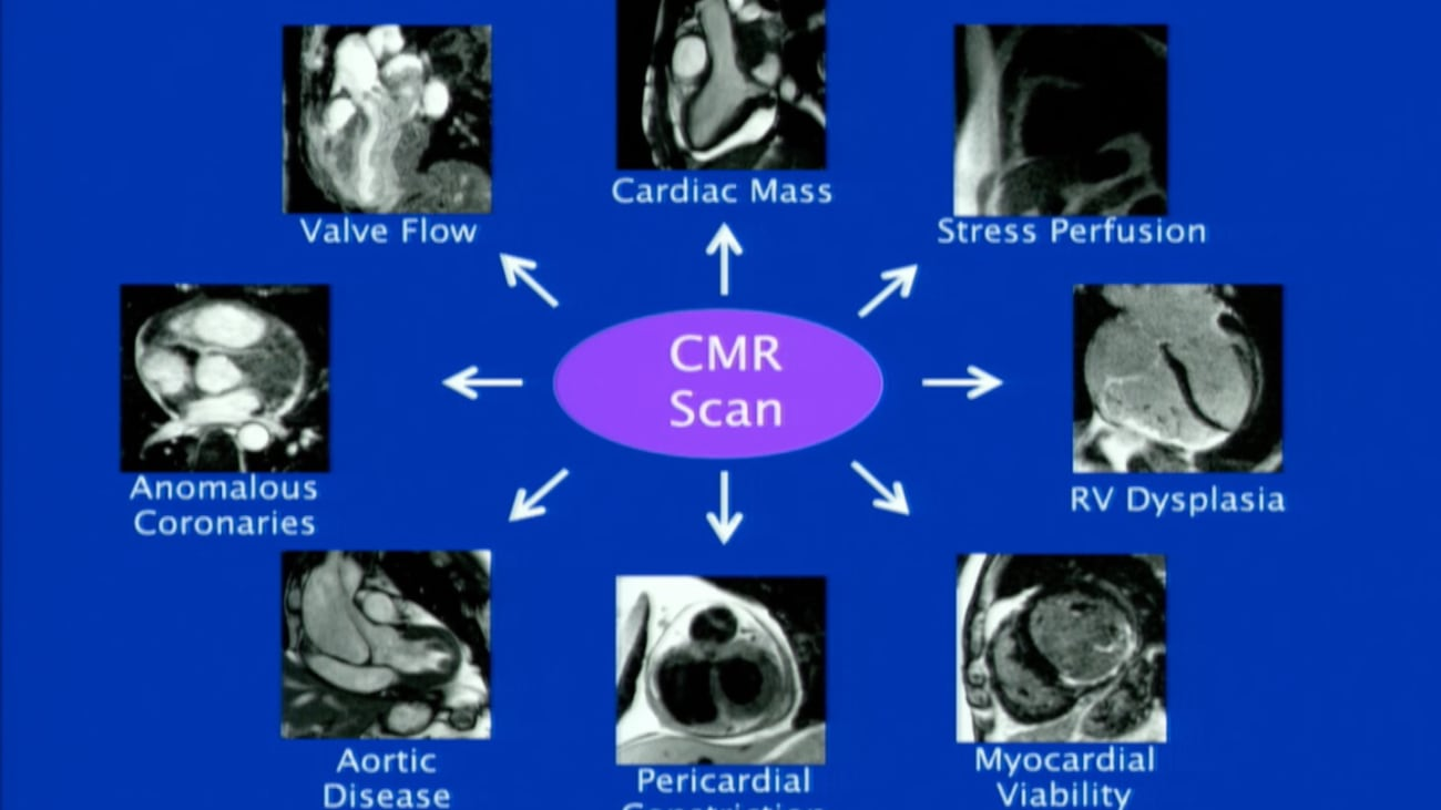 Cardiac MRI: Basic Principles