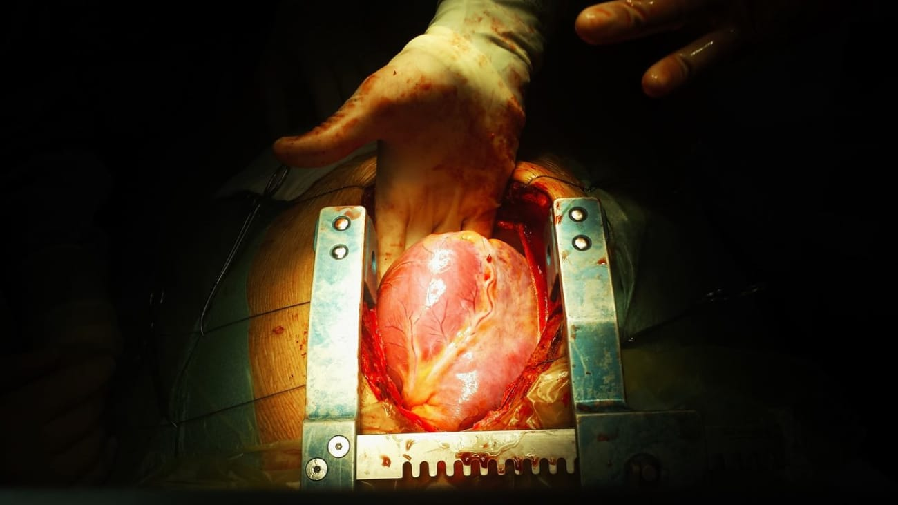 Updates in Heart Failure and Heart Transplantation