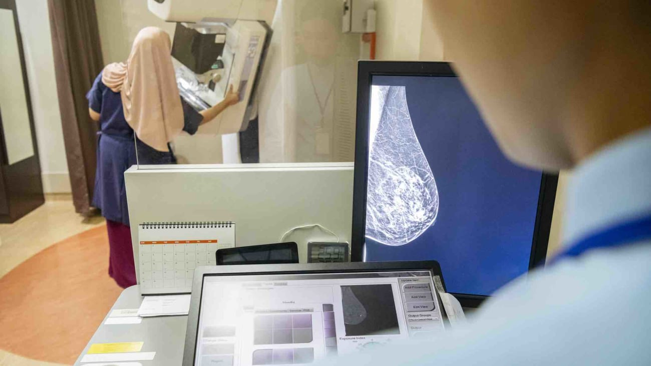 Screening Mammography Guidelines