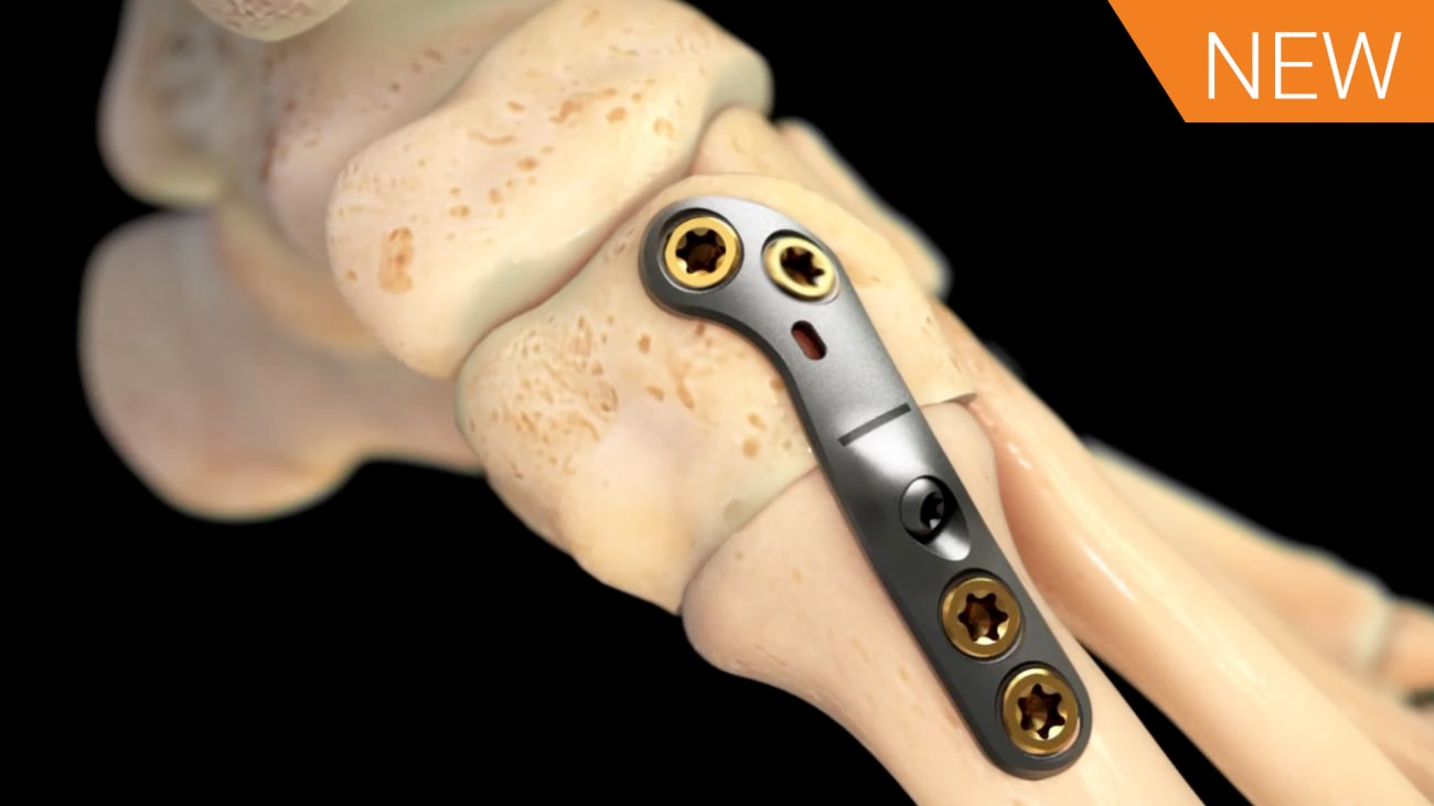 Lapidus Arthrodesis Animation featuring ORTHOLOC™ 2 CROSSCHECK™ [016677A]
