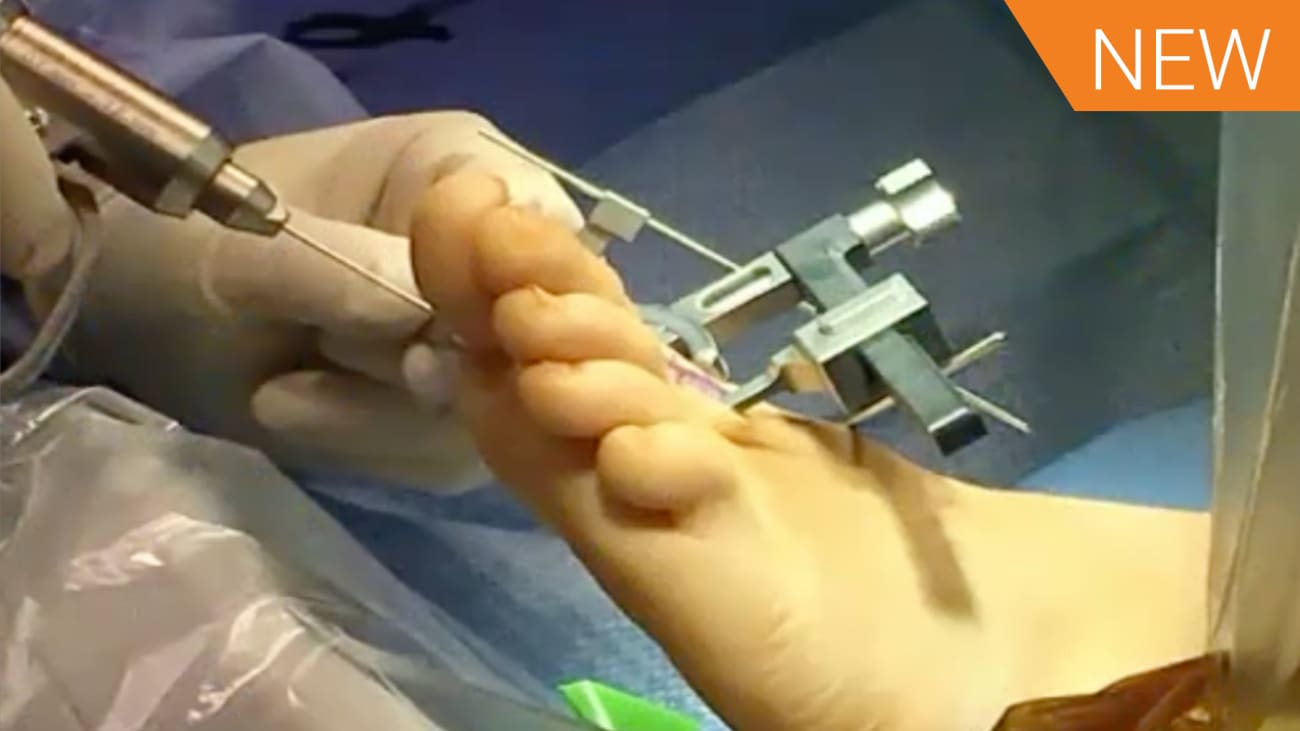 LapiFuse™: Finding a Better Way to Bunion Correction with Dr. Jeremy McCormick [AP-013821A]