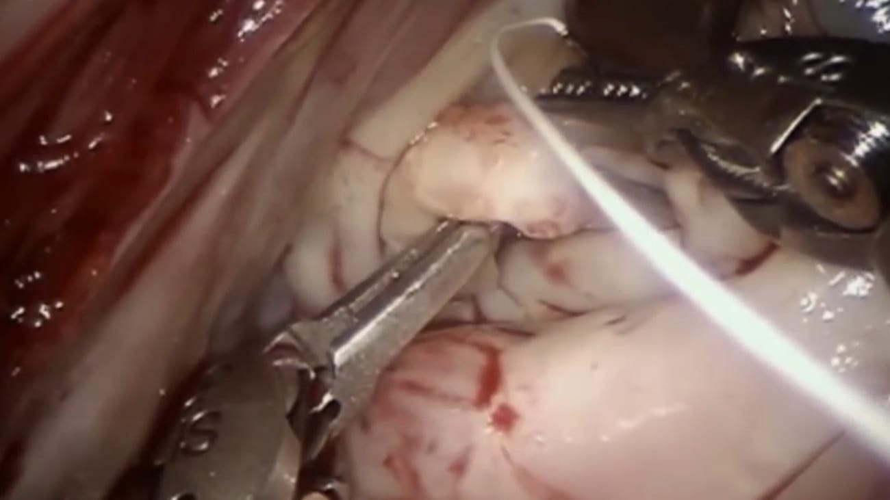 Robotic Repair of Mitral Commissural Endocarditis … Technique