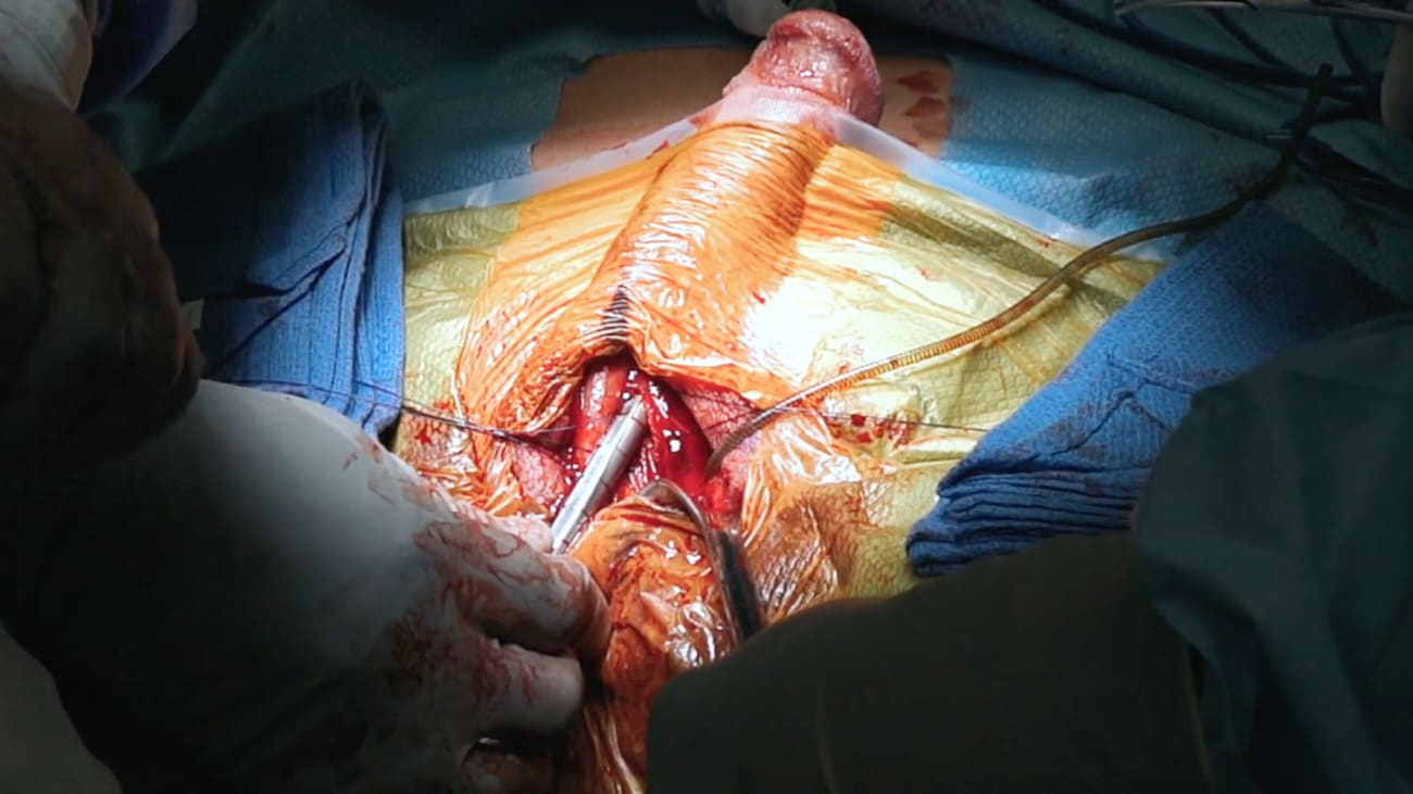 Using the Penile Scrotal Approach During Penile Prosthesis Surgery to Treat Erectile Dysfunction