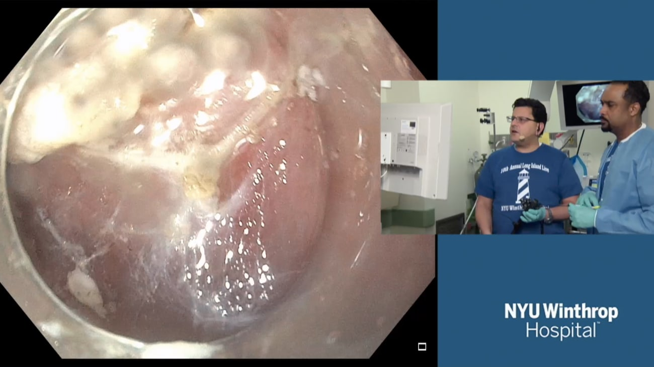 Tunnel-assisted Endoscopic Submucosal Dissection (ESD) of Gastric High Grade Dysplasia (HGD)
