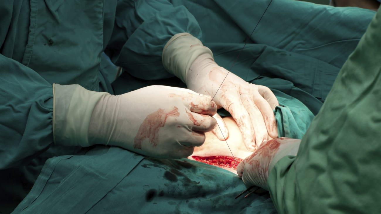 Obstetrical Hemorrhage
