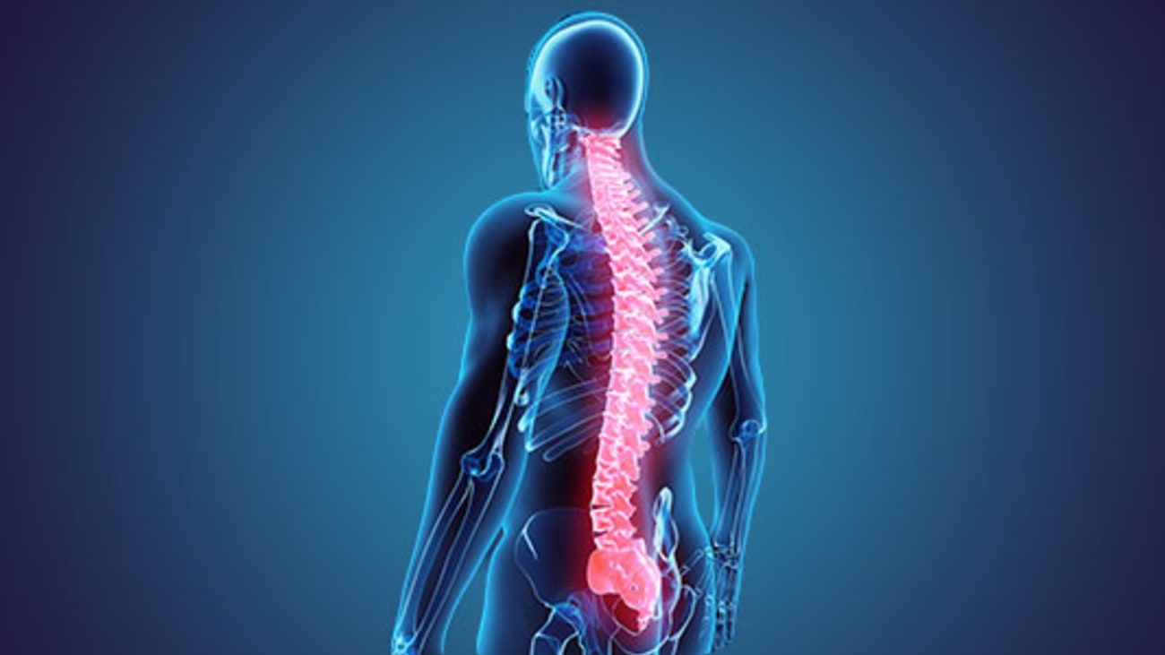 Q&A on Cervical Spinal Stenosis