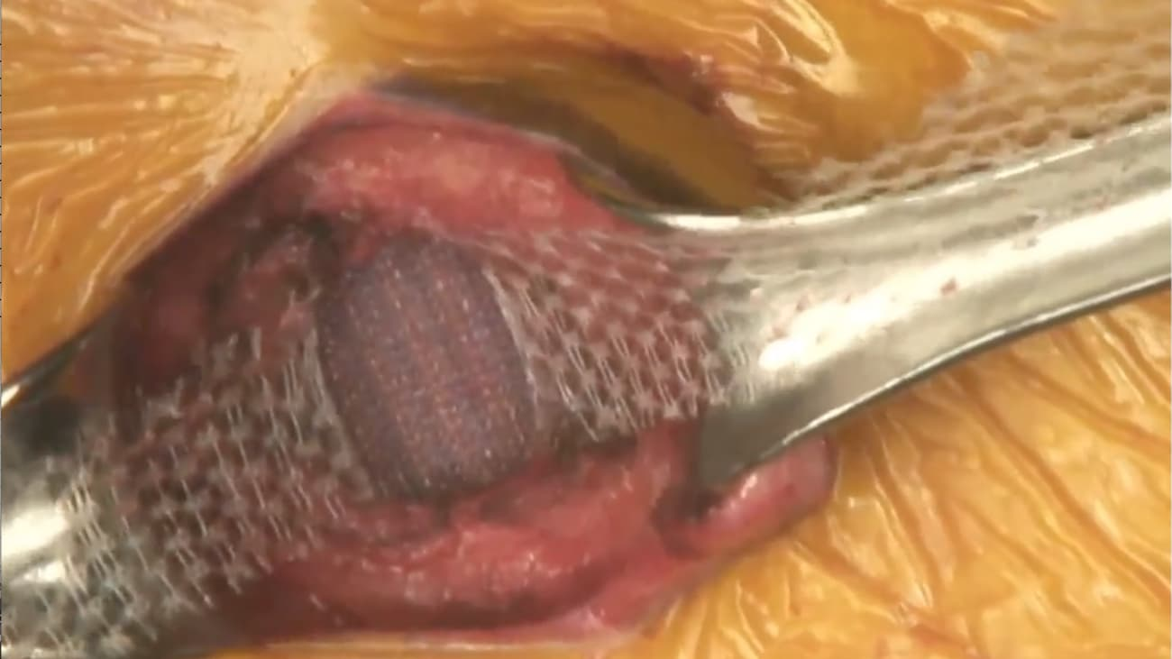 Umbilical Hernia Repair with Ventralex ST Hernia Patch