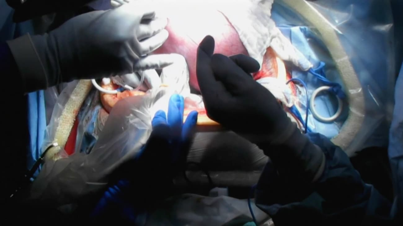 Fetoscopic Spina Bifida Repair Procedure