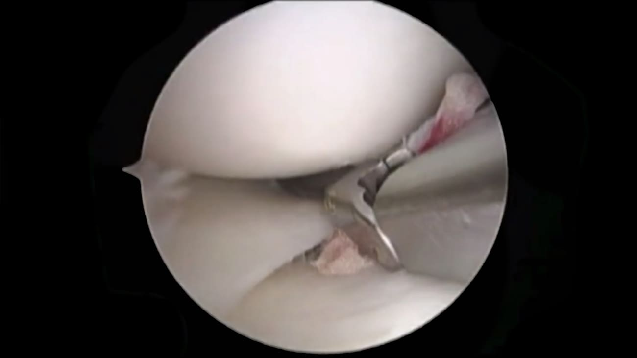 Meniscus: Intrasubstance Tear
