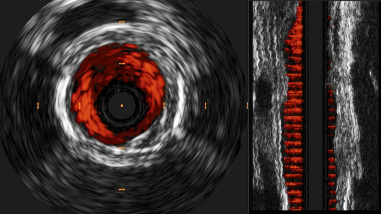 IVUS guided Phoenix atherectomy system case study: SFA treatment