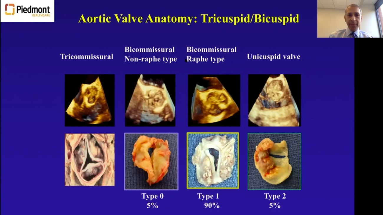 Prosthetic Valves: The Great Debate