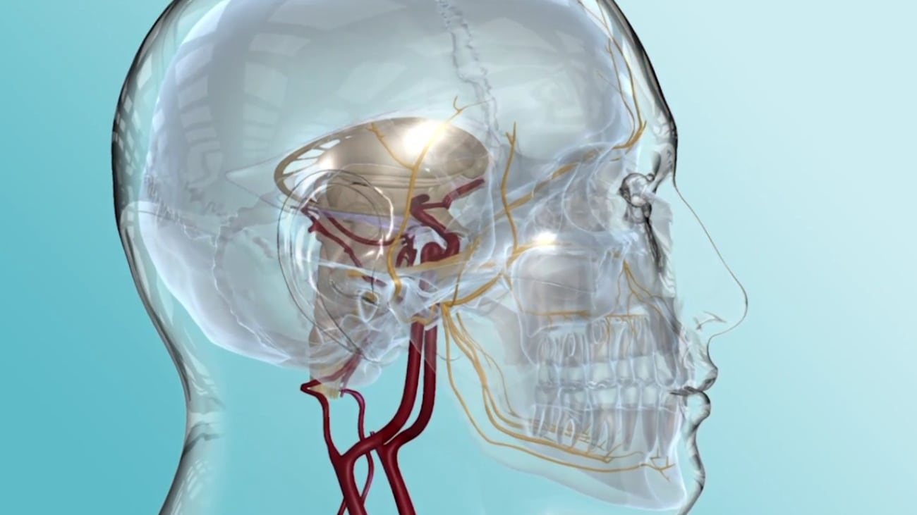 Trigeminal neuralgia is a chronic pain condition that affects the trigeminal nerve