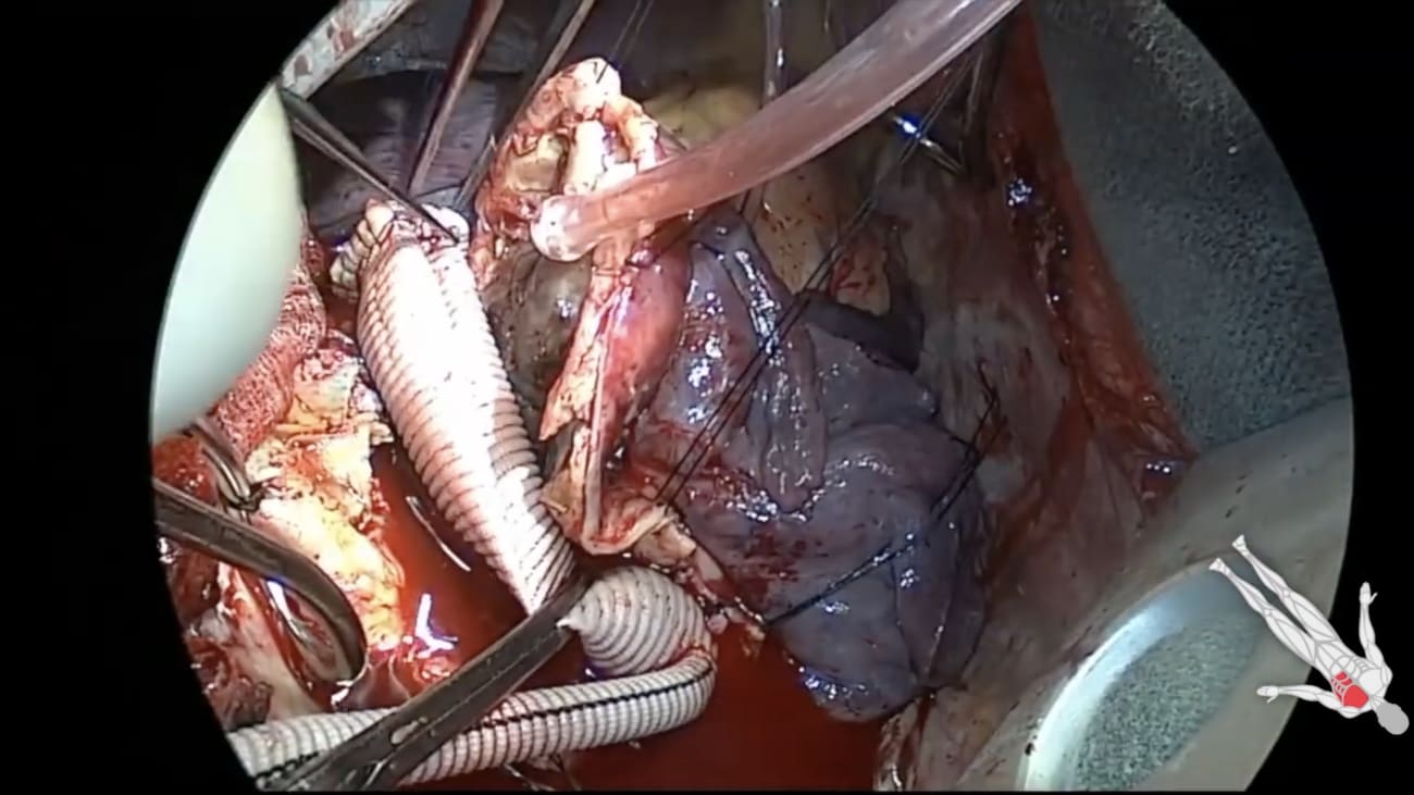 TEVAR Explantation and Aortoesophageal Fistula Repair