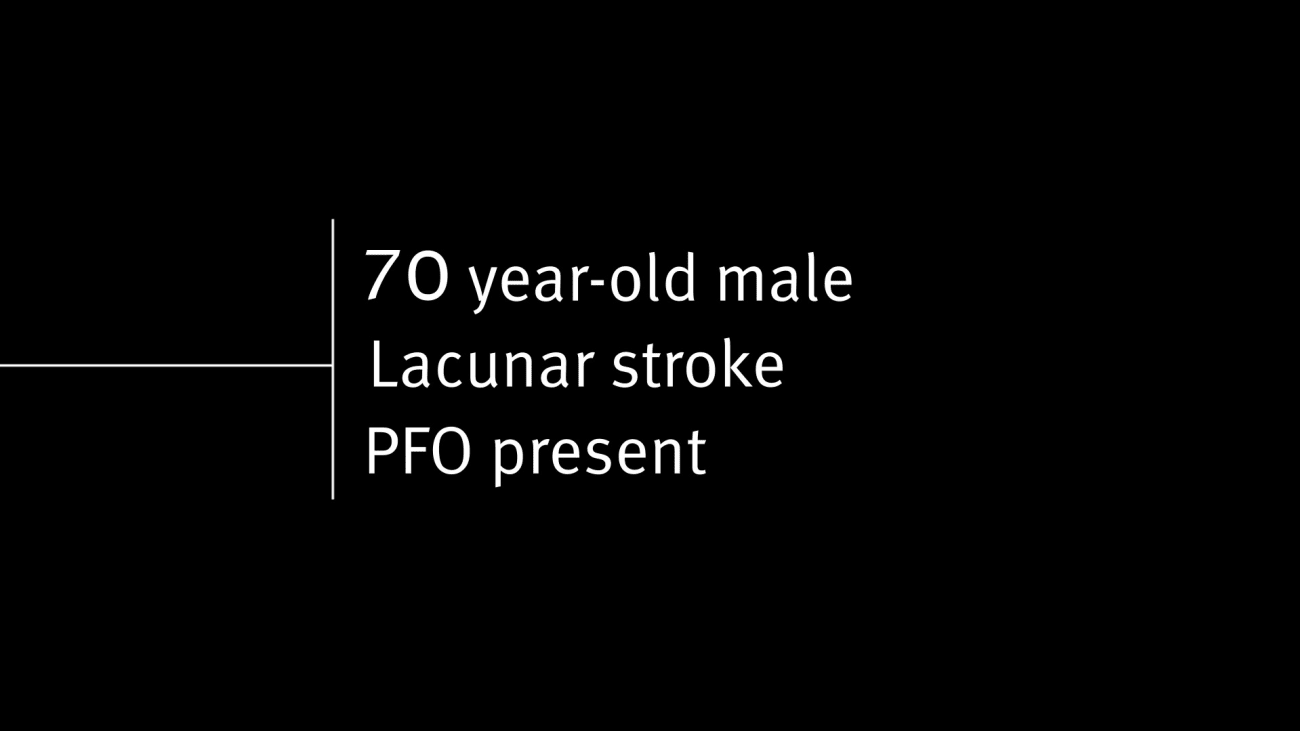 To close or not to close? PFO-stroke case study of 70-year-old male