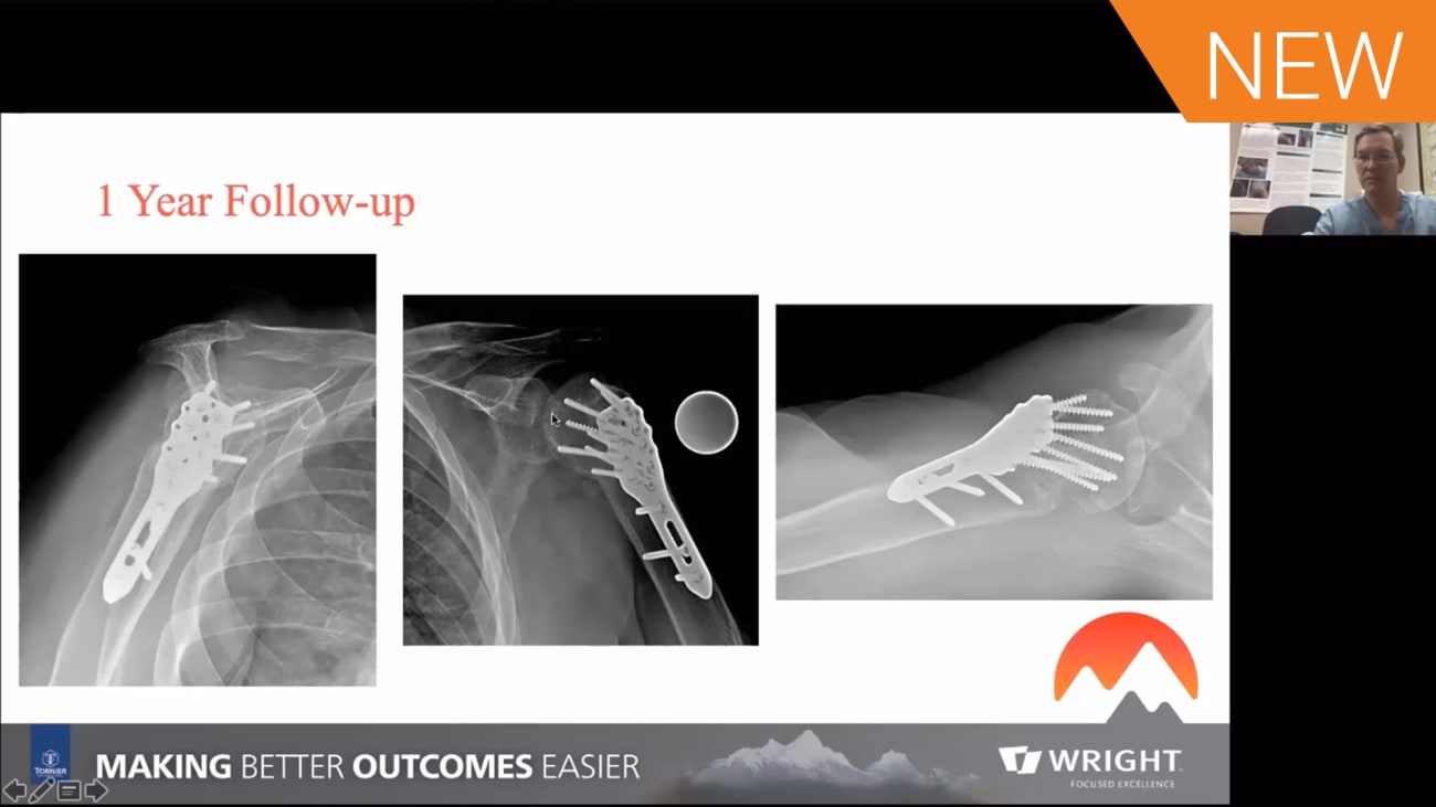 Nail, Plate, or Arthroplasty? Clinical Decisions for Proximal Humerus Fractures