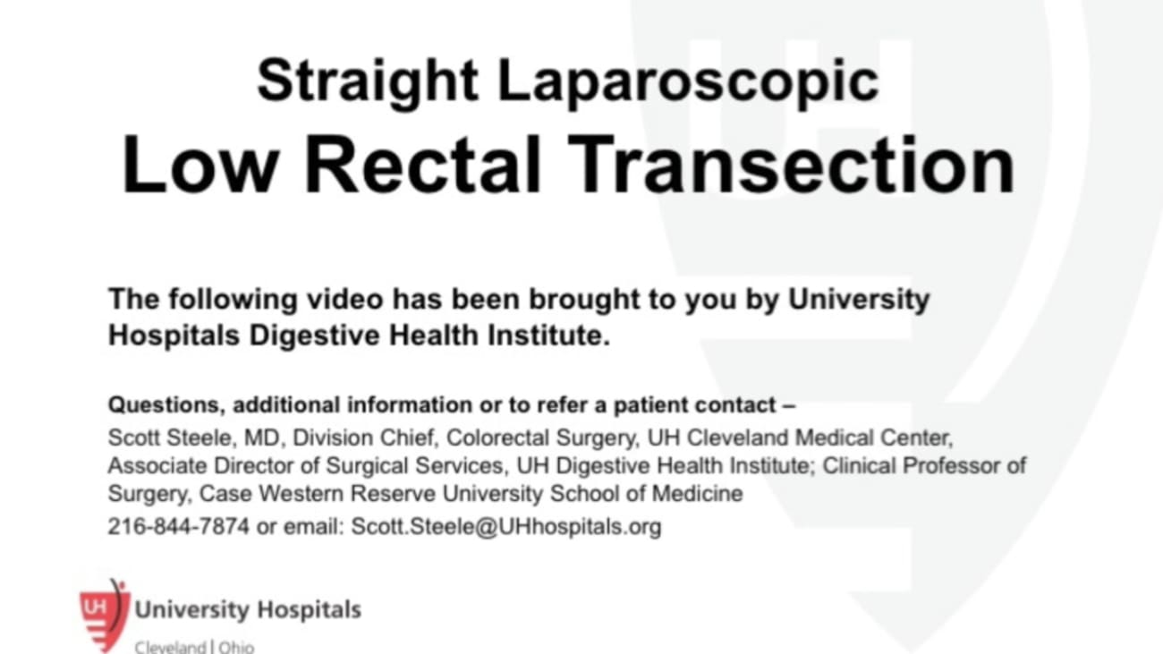 Straight Laparoscopic Approach Middle Colic Vessels Transverse