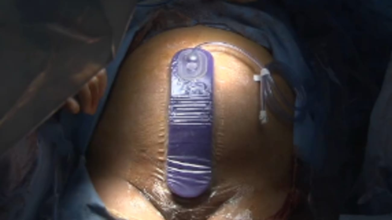 Prevena™ Incision Management System Application Technique