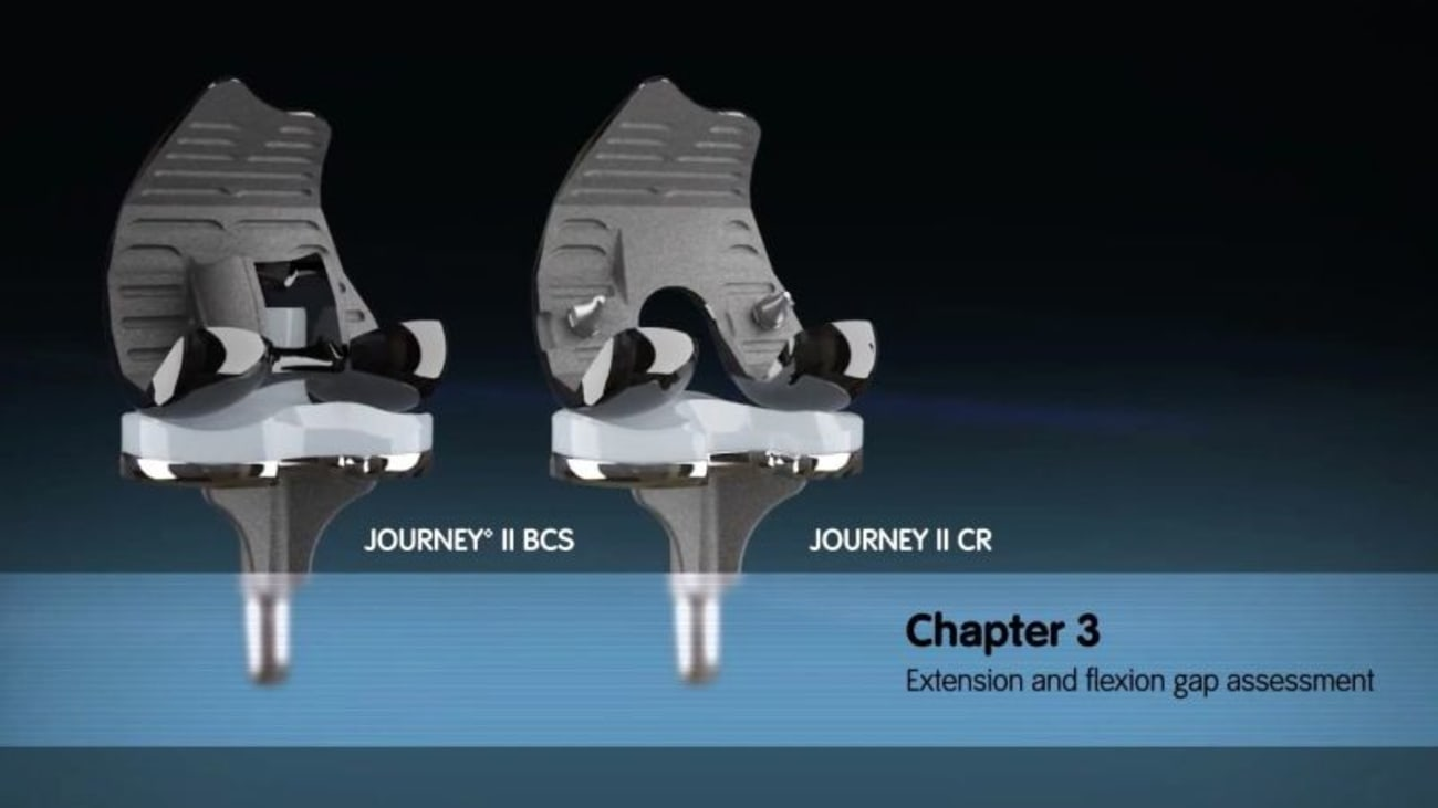 JOURNEY II Active Knee Solutions - Chapter 3