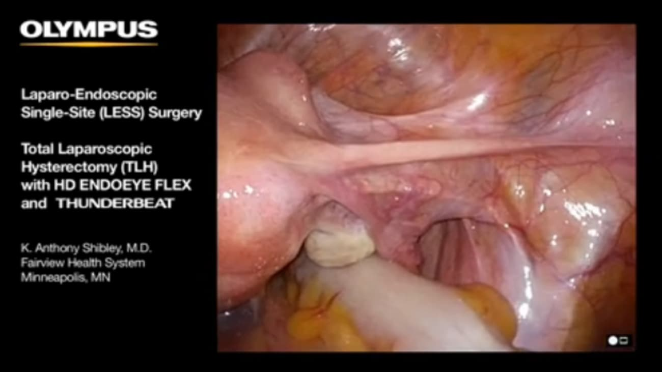 Single-Site Total Laparoscopic Hysterectomy with TriPort+, ENDOEYE FLEX 5 and THUNDERBEAT