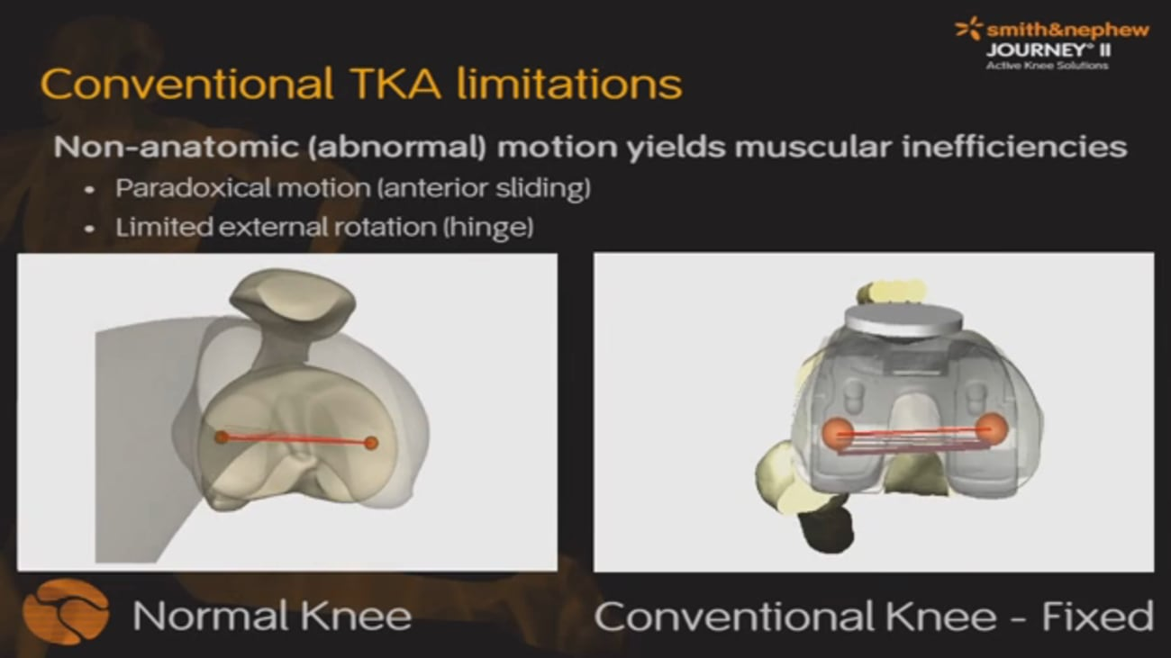 JOURNEY™ II Cruciate Retaining (CR) Knee System Presentation