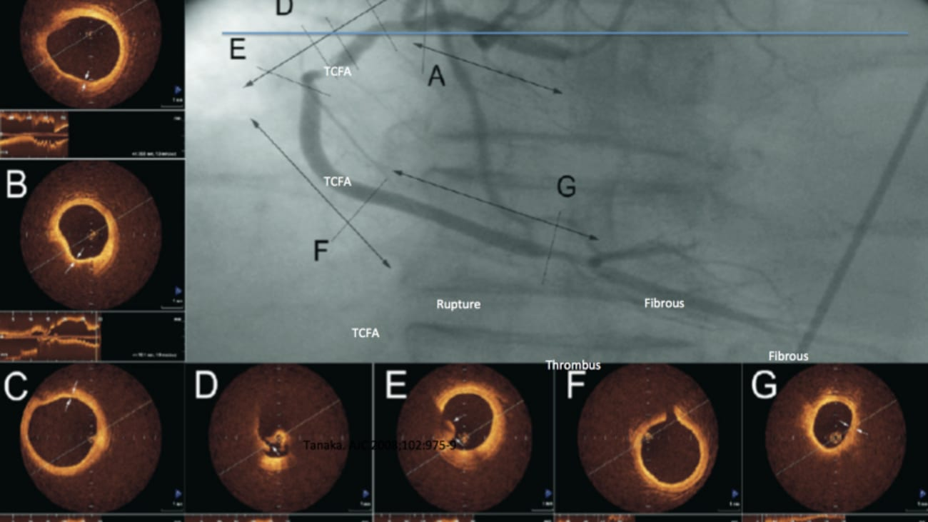 Culprit v Complete Revascularization for STEMI Patients: The Role of Invasive Coronary Imaging