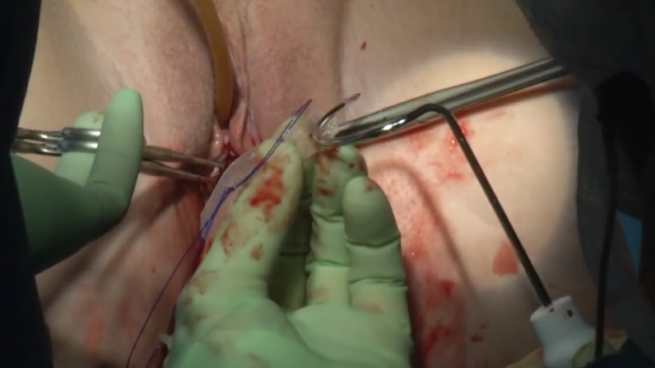 Altis® Single Incision Sling Under Local Anesthesia Live Surgery AAGL 2014 - Vincent Lucente, MD