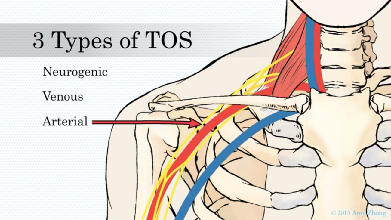 Nerve Block Treatment for Thoracic Outlet Syndrome (TOS) - Johns ...