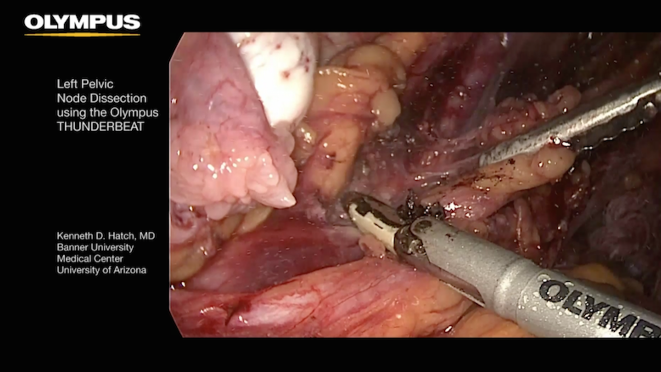 Left Pelvic Node Dissection with THUNDERBEAT