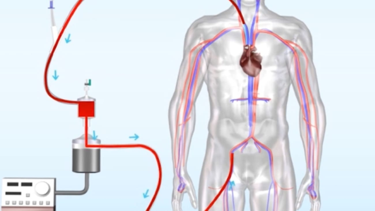 AngioVac Procedure: Treatment for Deep Venous Thrombosis - BroadcastMed