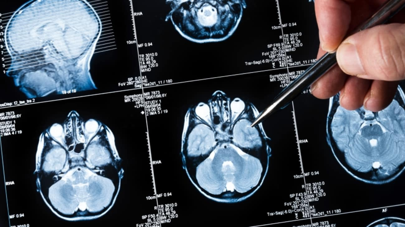 Treatment of Brain Metastases: New Evidence, New Options