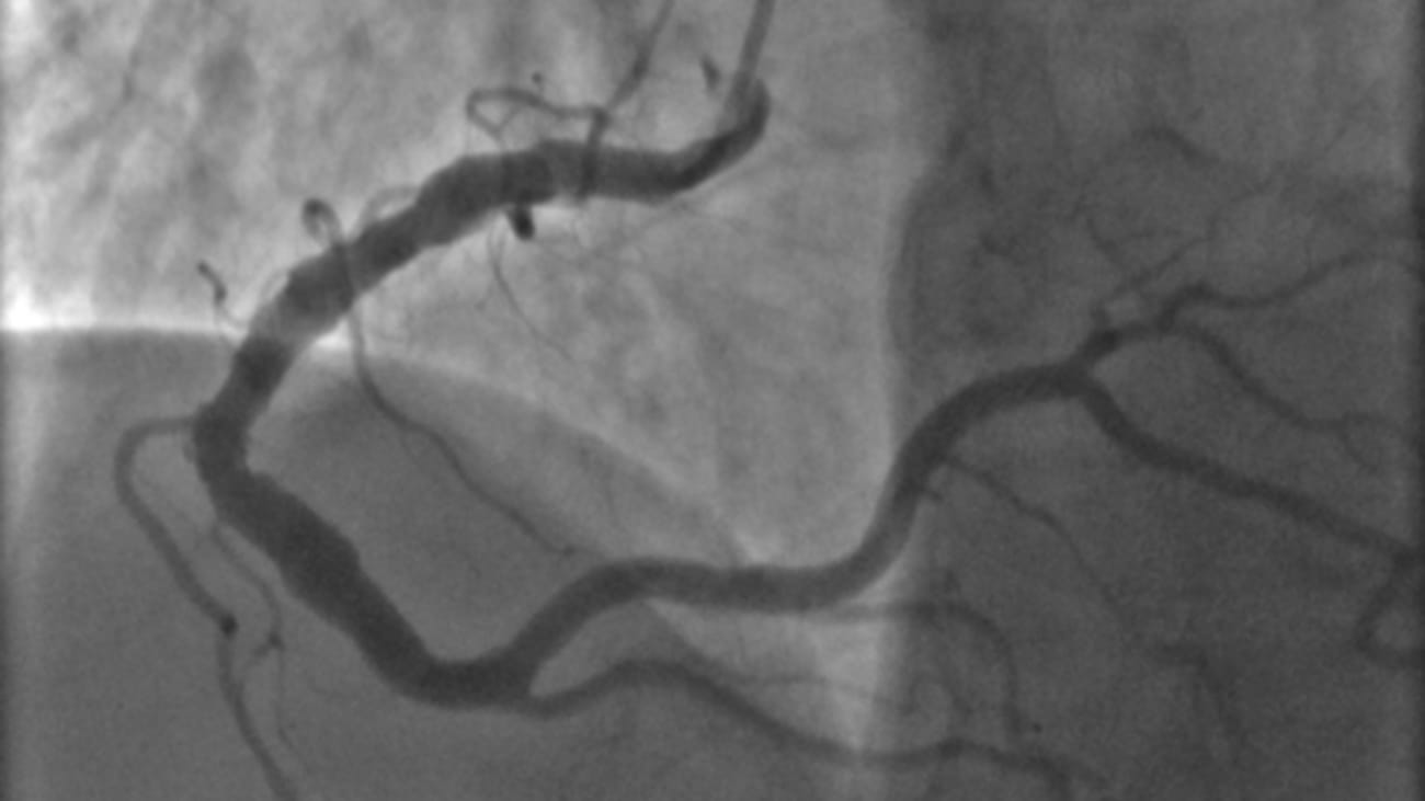 Limitations of the Coronary Angiogram: More than Meets the Eye – Cardiology Grand Rounds