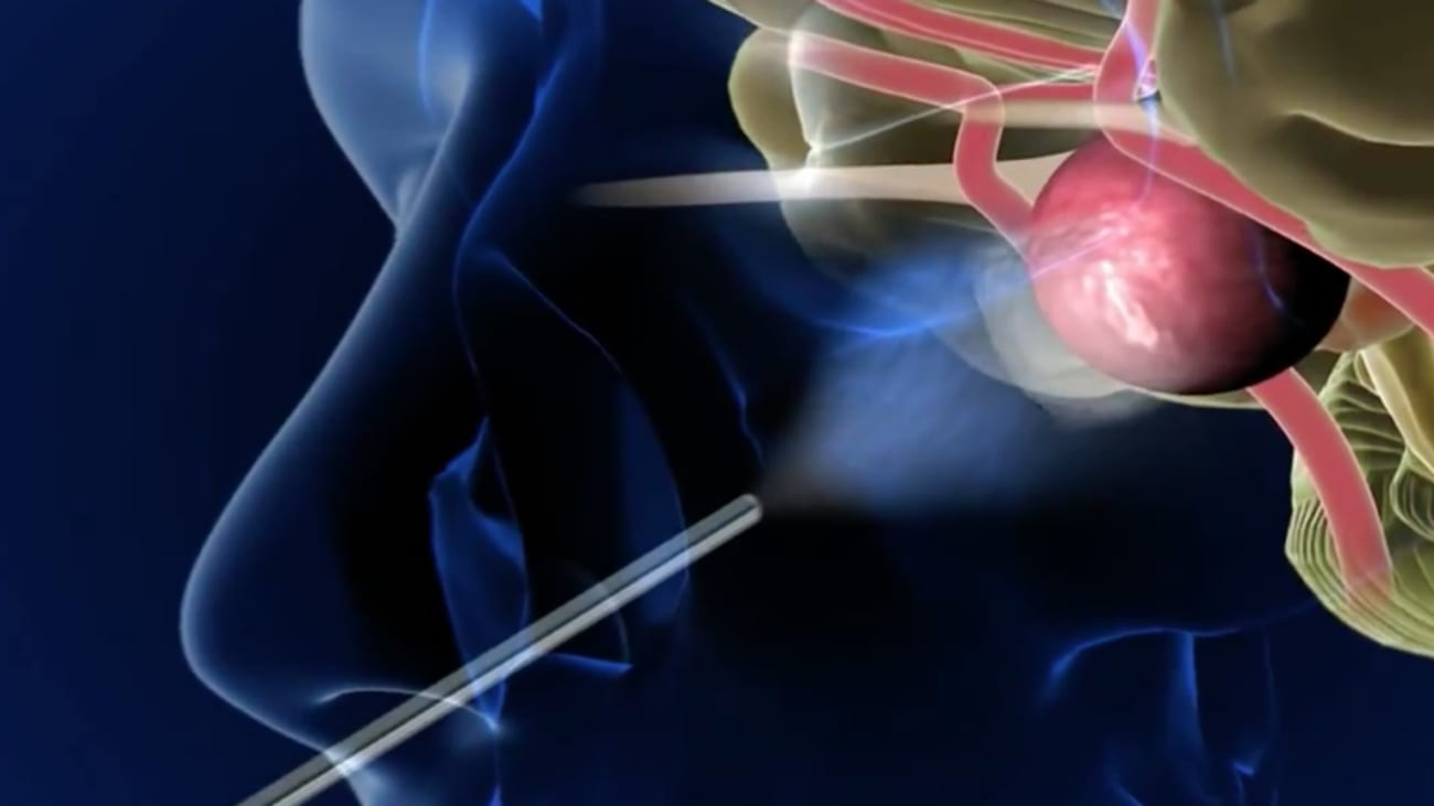Endoscopic Endonasal Skull Base Surgery Broadcastmed