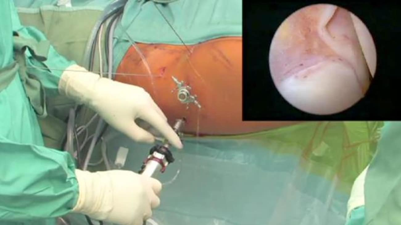 Hip Arthroscopy: HPS—Hip Portal System