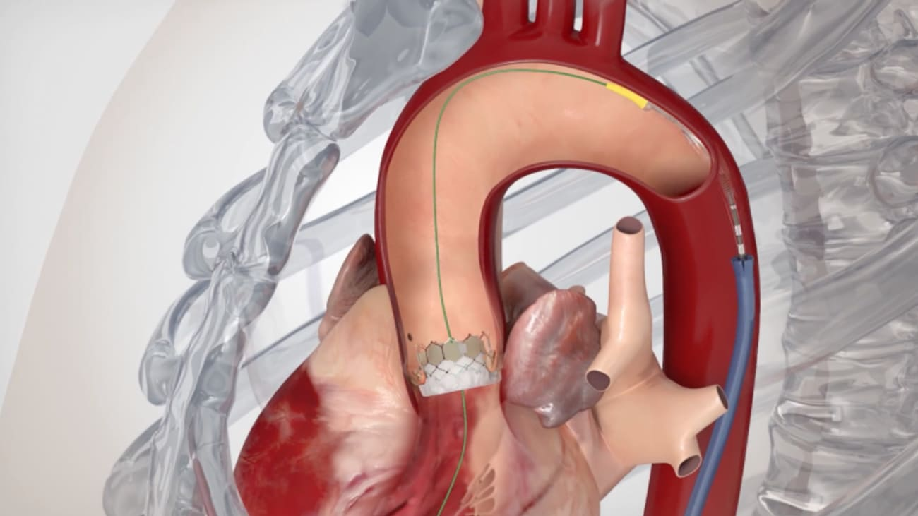 Transcatheter Aortic Valve Replacement (TAVR): Overview