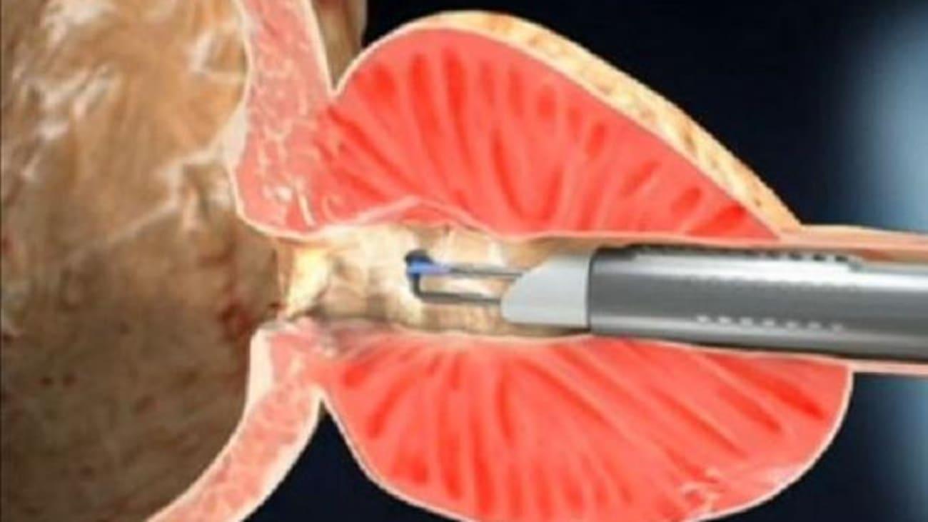 prostata vaporisation