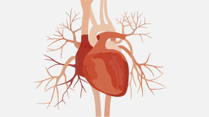 Cardiologists and Engineers Collaborate to Create New Treatments for Heart Disease