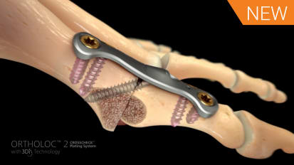 1st MTP Fusion Animation featuring ORTHOLOC™ 2 CROSSCHECK™ [016676A]
