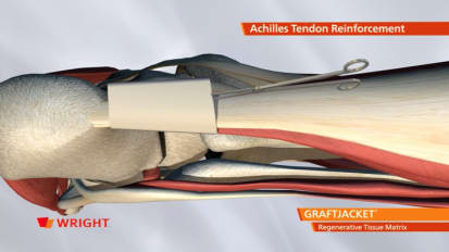 GRAFTJACKET™ Animation Combo - Achilles, Fatpad (plantar), Lateral Ankle, Post Tib [009795]